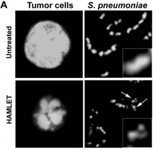 Chromatin condensation and fragmentation induced by HAMLET in tumor cells and S. pneumoniae.